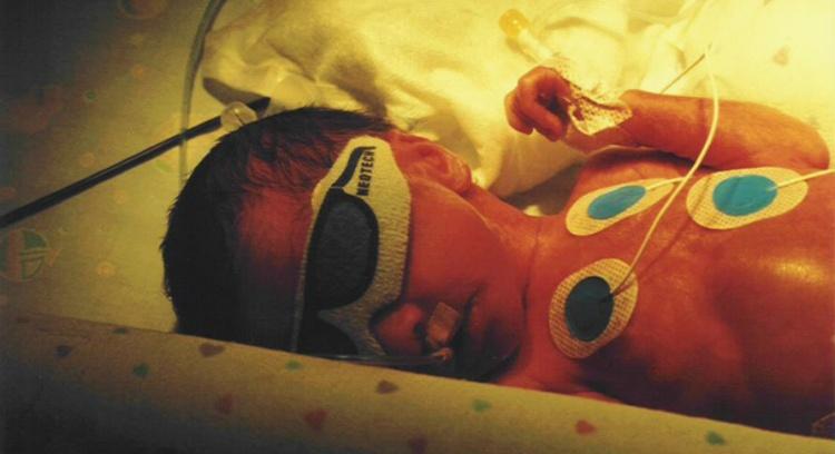XXS - Há 10 anos a ajudar bebés prematuros