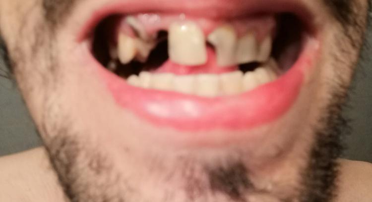Repôr dentes